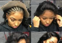 What Is A Lace Frontal