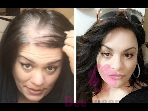 Wigs Disguise Thinning Hair