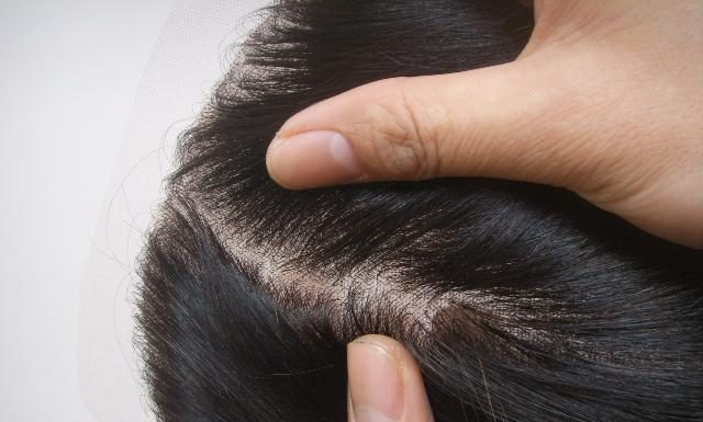 What Is Lace Closure
